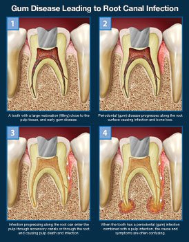 Gum disease leading to root canal infection.
