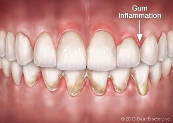 Gum inflammation.