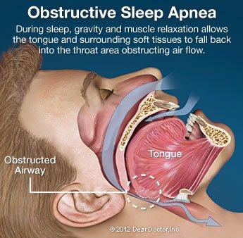 Obstructive Sleep Apnea.