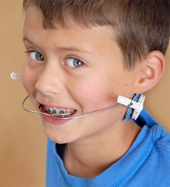 Child wearing orthodontic headgear.