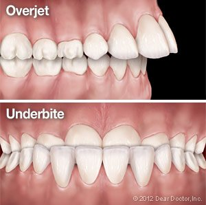 Overjet and Underbite.