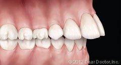 Protruding teeth.