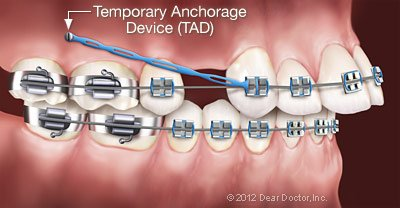 Temporary Anchorage Devices (TADS).