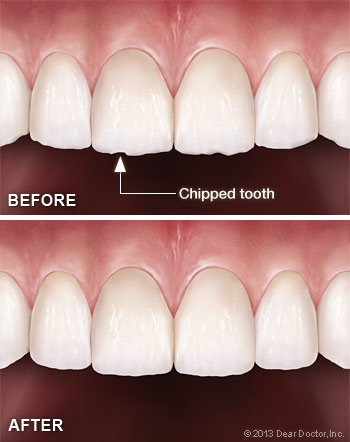 Tooth contouring and reshaping.