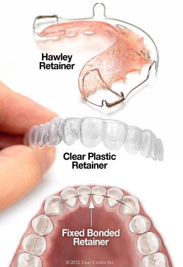 Types of orthodontic retainers.