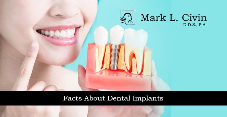 Facts-About-Dental-Implant