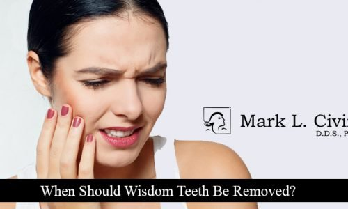 When-Should-Wisdom-Teeth-Be-Removed
