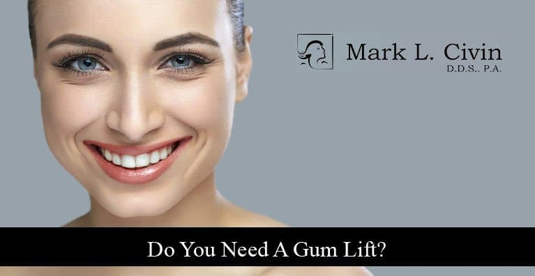 10 Do You Need a Gum Lift