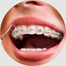 10 Orthodontic Treatment