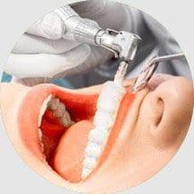 13 Professional Teeth Cleanings
