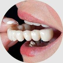 14 Removable Dentures
