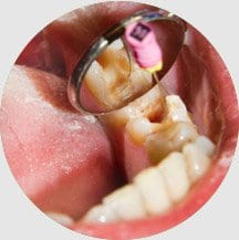 15 Root Canal Treatment