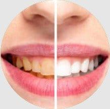 16 Teeth Whitening