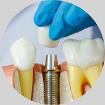2 Implant Restoration
