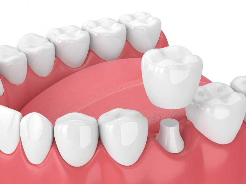 image of dental crown being placed